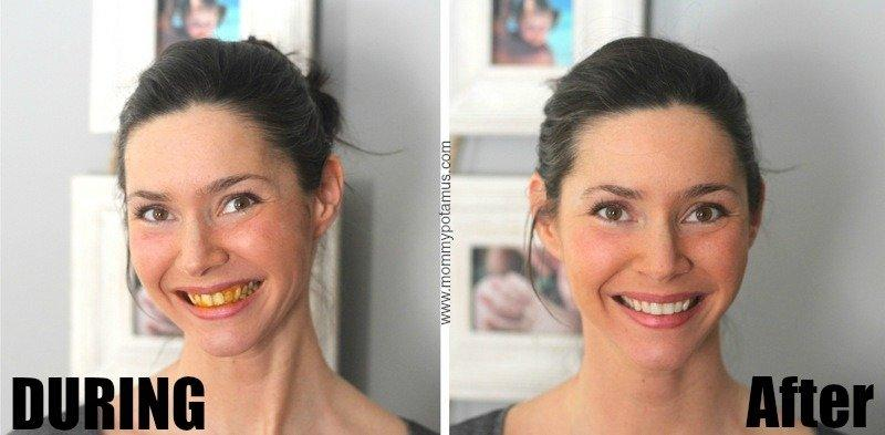 How To Easily Whiten Your Teeth With a Natural Ingredient?