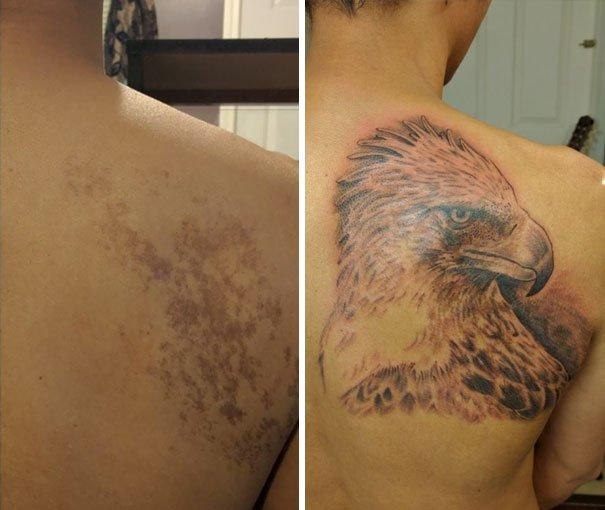 Tattoo Cover-Up: People Turned Birthmarks into a Fine Piece of Art