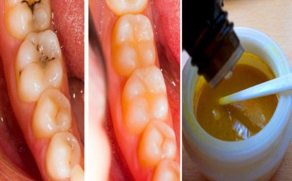 3 Methods to Heal Cavities and Have Healthy Teeth