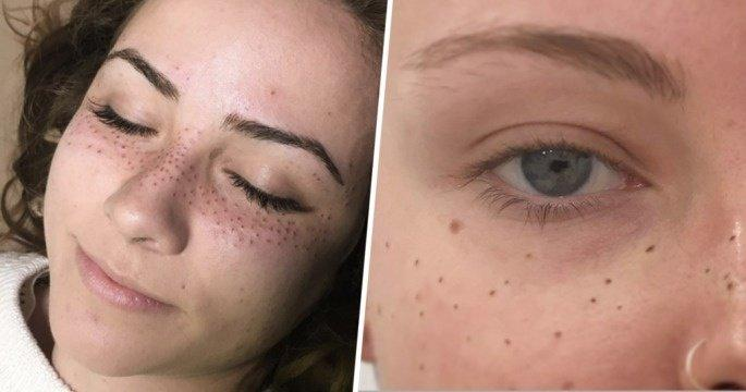 NEW TREND: People Are Tattooing Freckles on Their Faces
