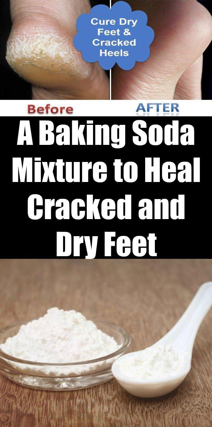A Baking Soda Mixture to Heal Cracked and Dry Feet