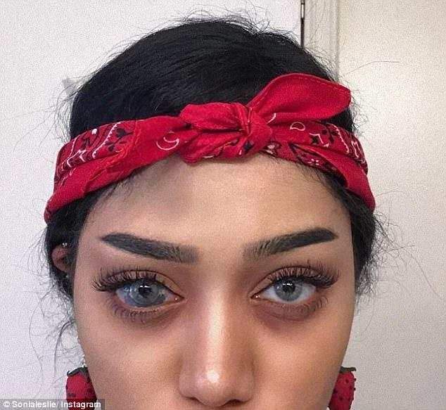 Stunning Instagram Star With A Unique Birthmark On Her Right Eyeball Hits Back At Trolls