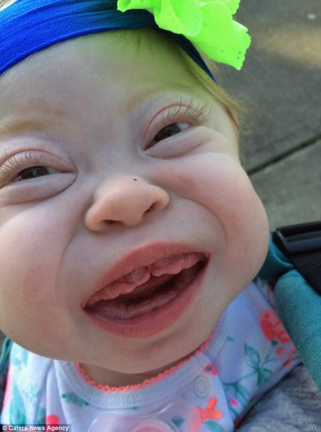 Meet The Beautiful Baby Girl Who Is Expected To Die Within A Year Due To A One-In-A-Million Condition