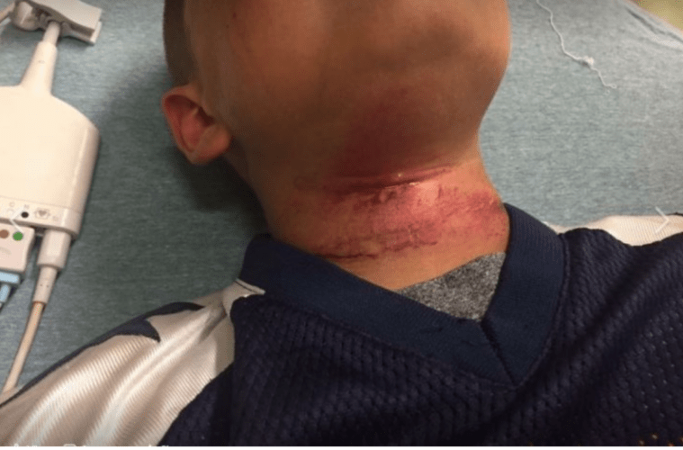 Family Demand Answers After An Eight Year Old Boy Attempted Lynching In New Hampshire