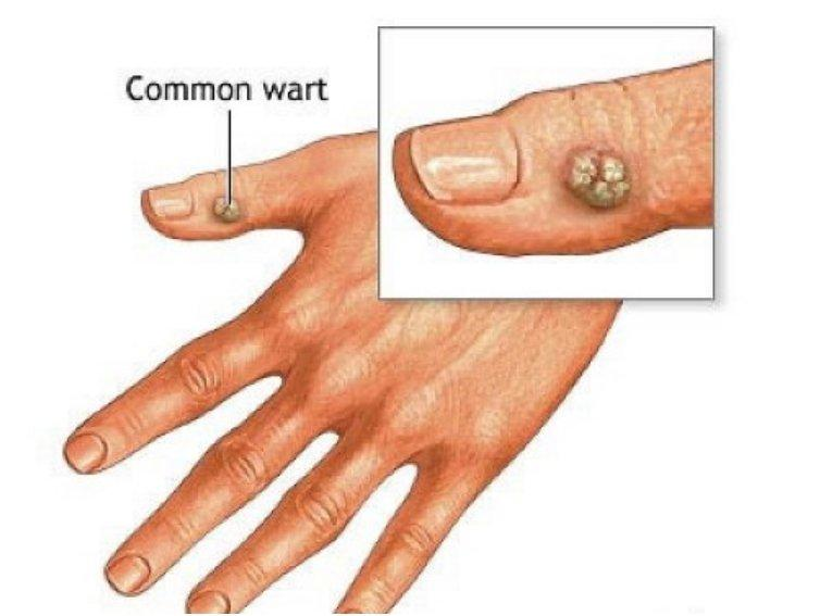 Take a piece of banana peel and apply it with its inner side directly on the wart. Tighten the peel using a handkerchief or a tape, so it can stay attached during the night