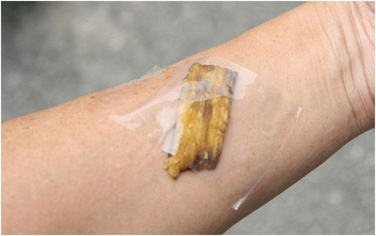 Tape the banana peel over the splinter. The enzymes will shift the splinter making it easy to remove it
