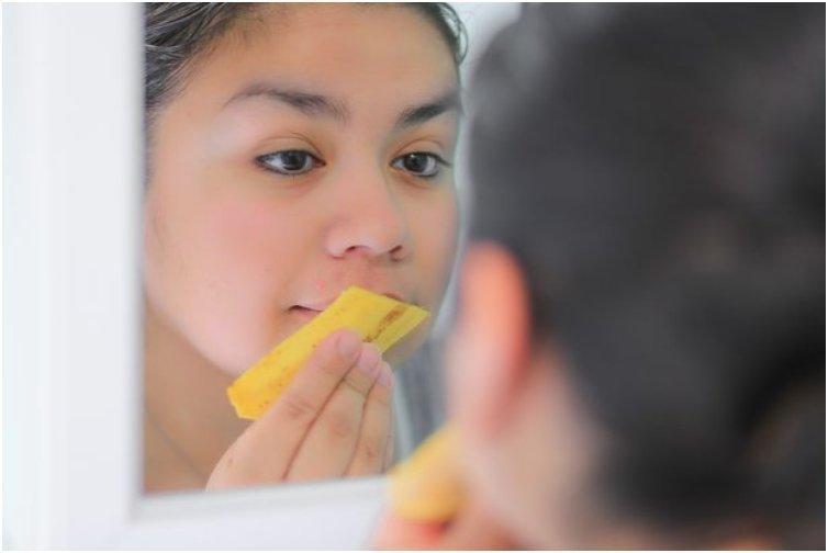 20 Unusual And Amazing Uses For Banana Peels