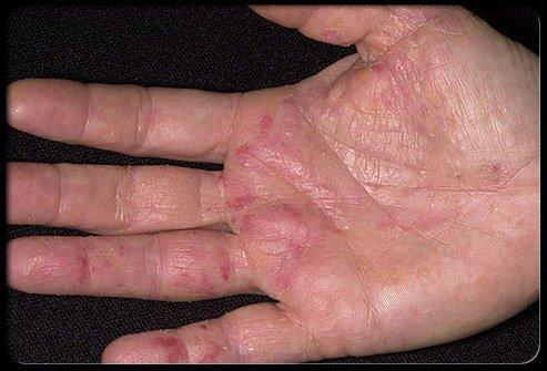 Don't Ignore The Cancer Symptoms That Show Up on Your Hands