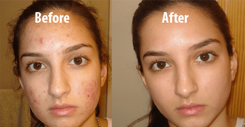 One Ingredient to Remove Them All: How To Clean Your Face