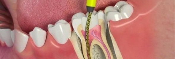 "How ""Root Canals"" Increases Chances for a Chronic Disease"