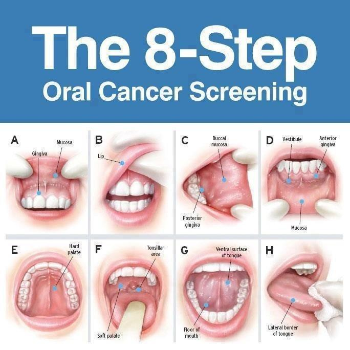 Mouth Cancer Symptoms