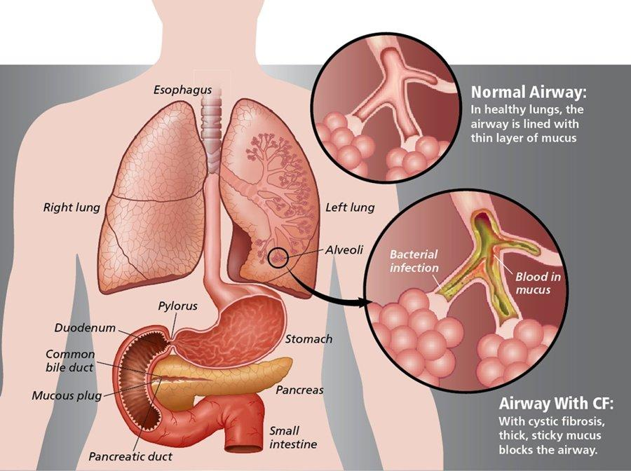 3-Ingredient Remedy That Clears Lung Mucus Immediately