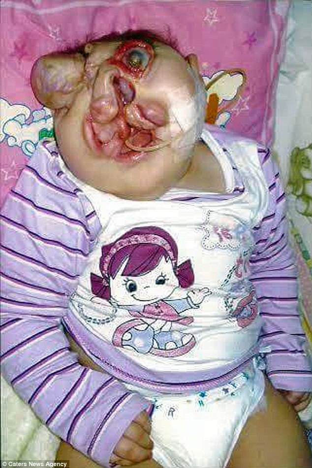 Girl Born Without A Face Defies Odds To Reach Ninth Birthday After Doctors Told Family To Plan Funeral