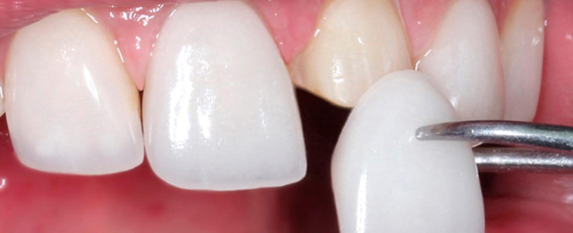 Hollywood smile: botched and beautiful
