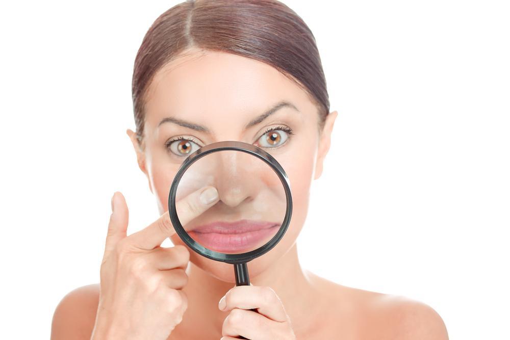 Acne blackheads on woman's Oily Nose