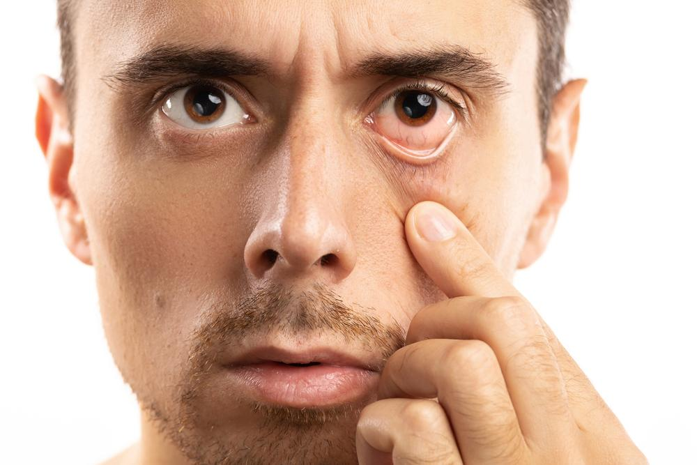 Tips for Getting Rid of Baggy Eyes