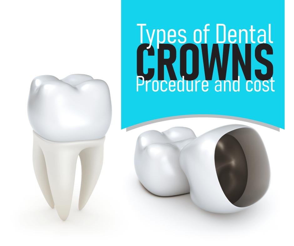 Types Of Dental Crowns: Procedure And Cost