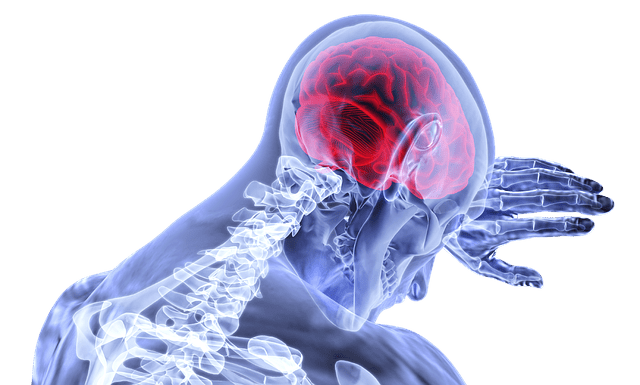 Suing For Brain Injury After An Accident: What You Should Know
